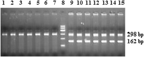 Agarose gel electrophoresis of the duplex PCR products, using HMG-box primers and beta-acting primers. The genomic DNA was extracted from male and female sheep. Lanes 1–7 are PCR products of genomic DNA from seven female sheep; lanes 9–15 are PCR products of genomic DNA from seven male sheep; lane 8 is 600 bp DNA ladder. The position of the 162 and 298 bp are the HMG-box product and beta-actin product, respectively.