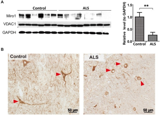 Expression of Miro1 in spinal cords of ALS patients. (A) Representative immunoblot and quantification analysis of Miro1 expression in thoracic spinal cord tissues from sporadic ALS (sALS) patients (n = 8) and age-matched control subjects (n = 6). Equal protein amounts (10 μg) were loaded and confirmed by GAPDH. VDAC1 was used as a mitochondrial specific marker. (B) Representative immunocytochemistry of mitochondrial marker COXI in lumbar spinal cords of sALS patients and age-matched control subjects. Arrowheads denote representative COX1 staining in motor neurons. Data are means ± sem. Statistics: student t test. **p < 0.01, compared with control subjects.
