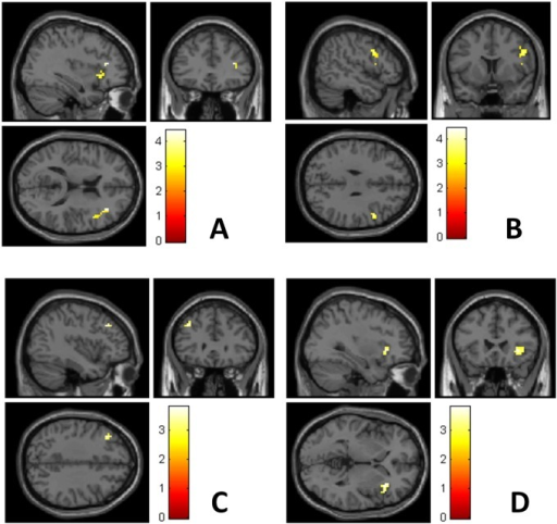 Reactivity in the right inferior frontal gyrus (A, B), left middle frontal gyrus (C) and right insula (D) during emotional stimulation was more pronounced in late postpartum than in early postpartum in 13 healthy newly delivered women.Brighter colors indicate higher T-scores. Early postpartum assessment was made within 48 hours of delivery, and late postpartum assessment within 4–6 weeks from delivery.