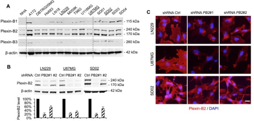 Plexin-B2 expression in glioma cell lines and shRNA knockdownA) Western blot of nine human ATTC glioma cell lines and four glioblastoma stem cell lines (GSC) reveals robust Plexin-B2 protein expression. Normal human astrocytes (NHA) served as control. Plexin-B1 and -B3 are expressed at variable levels in ATCC glioma cell lines and in GSC. B) Stable knockdown of Plexin-B2 with two lentiviral shRNA vectors in LN229, U87MG, and SD02 lines, as measured by Western blot quantification. C) Immunocytochemistry for Plexin-B2 in LN229, U87MG, and SD02 cells confirms reduced Plexin-B2 expression in knockdown lines. Scale bar: 20 μm.