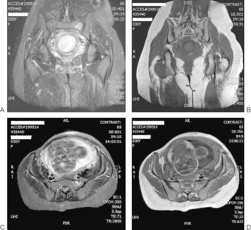 1 (A–D) Magnetic resonance images reveal a vertical shear fracture in the patient's left sacrum and osseous edema in the surrounding tissues.