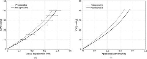 Numerical results.IOP versus apical displacement curves, in the preoperative and postoperative case. (a) Average over five patients. (b) Results for patient IV.