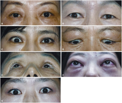 (A) Case 1 shows left upper eyelid retraction. (B) Case 2 shows right upper eyelid retraction. (C) Case 3 shows right upper eyelid retraction. (D) Case 4 shows both upper eyelid retraction and eyelid swelling. (E) Case 5 shows right eye proptosis. (F) Case 6 shows eyelid swelling and erythema, both conjunctival injection and severe proptosis. (G) Case 7 shows right hypotropia.