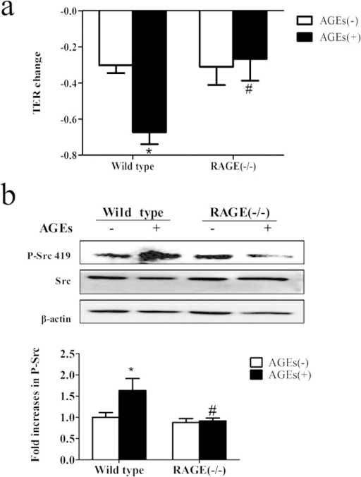 Involvement of RAGE in AGE-induced phosphorylation of Src and hyperpermeability.(a) Knockout of RAGE prevented AGE-induced PMVEC hyper-permeability. PMVECs of wild type mice and RAGE knockout mice were treated with or without 100 μg/mL AGEs for 90 min and TER was measured. (b) Knockout of RAGE prevented AGE-induced Src phosphorylation. PMVECs from wild type and RAGE knockout mice were treated with or without 100 μg/mL AGEs for 1 h. Phosphorylation of Src was detected by western blotting. The ratio of immunointensity between the phosphorylation of Src (p-Src 419) and β-actin were calculated. n = 3, *P < 0.05 versus wild type without AGEs, #P < 0.05 versus wild type with AGEs.