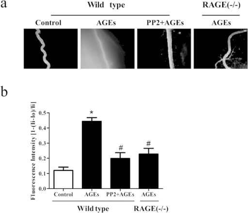 PP2 and knockout of RAGE prevents AGE-induced microvascular hyperpermeability.(a,b) Wild type (WT) or RAGE−/− mice were pretreated with AGEs or AGEs plus PP2, The exudation of FITC-dextran from mesenteric venules was determined. Vascular permeability is expressed as the relative fluorescent intensity inside the vessel to that outside the vessel. n = 3, *P < 0.05 versus control group, #P < 0.05 versus AGEs. Each image was recorded at a 100 × magnification.