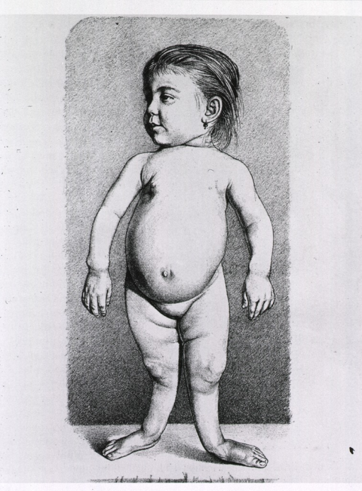 <p>Full length view of a young female child with rickets.</p>