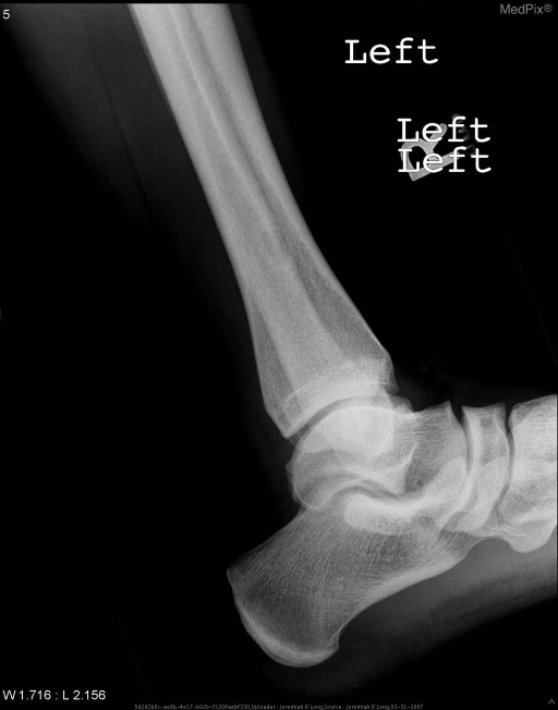 Frontal and lateral radiographs of the left ankle demonstrate a small, longitudinal, well circumscribed cortically based lytic lesion at the lateral aspect of the distal tibial metaphysis.  The lesion has sclerotic borders somewhat scaloped inferiorly and medially, no periosteal reaction and has no appreciable associated soft tissue abnormality.  There is no fracture or dislocation.
