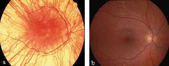 Fundus picture of a patient with albinism (a) and fundus picture of a normal eye (b).