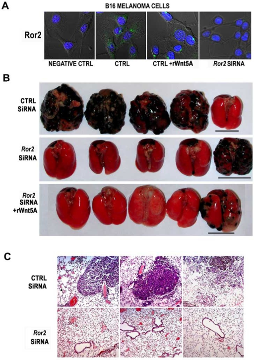 ROR2 knockdown inhibits the in vivo invasion of melanoma cells in a murine modelB16 melanoma cells express the Ror2 receptor in a pattern, and at levels similar to that of UACC1273EV cells (A, CTRL). Treatment of B16 cells with rWnt5A causes redistribution of Ror2 to perinuclear foci, as seen with human cells (A, CTRL+rWnt5A). Treating B16 cells with Ror2 siRNA results in a decrease in Ror2 expression (A, Ror2 siRNA). In vivo tail vein metastasis assays demonstrate that Ror2 knockdown can significantly inhibit the pulmonary metastasis of melanoma cells, an effect that cannot be recovered by the addition of rWnt5A (B). Outliers in each group are shown and underlined. Immunohistochemical analysis of these tumors indicates that there are very few micrometastases in the ROR2 siRNA treated mice (C).