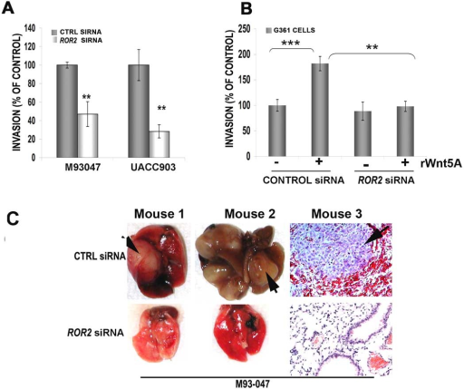 ROR2 decreases motility and invasiveness in metastatic in human melanoma cell lines in vitro and in vivoUsing a Matrigel invasion assay, ROR2 knockdown inhibits the invasion of UACC903 and M93-047 cells by over 50% (A). Two different siRNAs were used to demonstrate the requirement for ROR2, see also Supplementary Figure 3. G361 cells are similarly affected in a matrigel invasion assay, where Wnt5A treatment can significantly (**=p<0.01, ***=p<0.001) increase their migration through Matrigel, but not in the presence of ROR2 siRNA (B). When M93-047 29 cells are injected via the tail vein into nude mice, ROR2 knockdown results in a decreased ability of M93-047 cells to form pulmonary metastases (C). Two lungs with evidence of macroscopic metastases are shown and a histology section from a third mouse (C, arrow) is shown in order to demonstrate the hemorrhaging seen in these tumors.