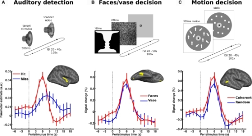 Local spontaneous variations in ongoing activity of specialized sensory regions impact perception. The upper part illustrates the paradigm: (A) auditory detection experiment: in a free-response setting subjects detected an auditory target stimulus presented at perceptual threshold. (B) Perceptual decision on an ambiguous figure: subjects reported either faces or vase perception in response to flashes of the faces-vase ambiguous figure. (C) Motion decision experiment: random dot motion was presented at motion coherence threshold and subjects decided trial by trial whether motion was coherent or random. In all experiments, trials followed at long and unpredictable intervals. In each experiment, the pre-stimulus BOLD signal (dotted vertical line marking stimulus onset) was examined as a function of perceptual outcome and sampled from accordingly specialized sensory areas. The corresponding regions of interest (early auditory cortex, FFA and hMT+, respectively) are presented on a canonical inflated cortical surface of the right hemisphere. In all experiments, higher pre-stimulus time course in the respective sensory region biased towards perceiving stimulus properties for which these regions are particularly sensitive. Error bars represent standard error across subjects. For more details see Hesselmann et al. (2008a,b); Sadaghiani et al. (2009).