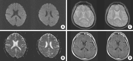 Follow-up MRI obtained 14 days later. The images correspond to those in Fig. 1 and show complete resolution of the SCC lesion with no residual changes.