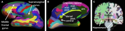 Brain morphometric parcellation results for an example subject, identifying key regions from this study. (A,B) Lateral and medial representations of the inflated cortical surface showing the 75 parcellated cortical regions per hemisphere. Only the left hemisphere is shown, laterally (A) and medially (B). (C) Coronal slice highlighting several subcortical structures automatically identified by the Freesurfer algorithms (thalamus, ventral diencephalon, hippocampus, basal ganglia, etc).