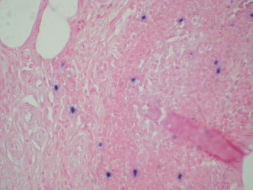 Appendiceal infiltrate showing scattered Epstein Barr Virus-positive cells (100 X).