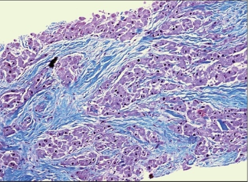 Liver biopsy showing hepatocellular carcinoma: fibrolamellar subtype (Hematoxylin and eosin stain ×200).