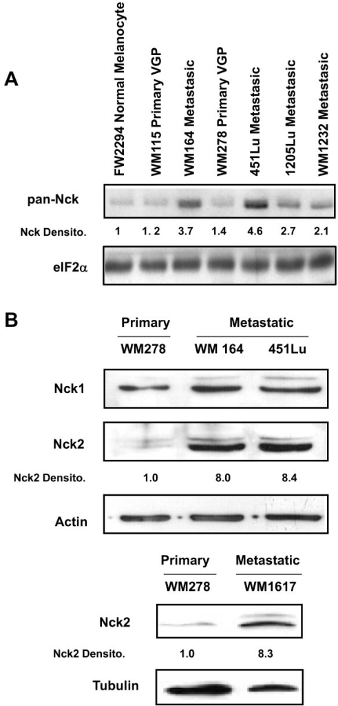 Nck expression in human melanoma cell lines at different stages of cancer progression. Equivalent amount of total proteins from human primary and metastatic melanoma cell lysates (30 μg) were subjected to western blot analysis using indicated antibodies. (A) Pan-Nck antibodies recognize Nck1 and Nck2. eIF2α was used as loading control. (B) Nck1 and Nck2 are specific Nck isotypes antibodies (Additional file 1) and β-actin or tubulin was detected as loading controls. Quantification of Nck1 and Nck2 signals, evaluated in the linear range of detection by densitometry, are reported below the blots. Human Melanoma Cell Lines Characteristics: FW2294: normal melanocyte; WM115: poorly metastatic primary melanoma in vertical growth phase and with round morphology; WM164: elongated metastatic melanoma isolated from lymph nodes; WM278: poorly metastatic primary melanoma in vertical growth phase and with mixed morphology; WM1617: elongated metastatic melanoma derived from lymph nodes, sister match of WM278; 451Lu: elongated metastatic melanoma selected in lungs of mice injected with WM164 cells; 1205Lu: round metastatic melanoma selected in mice; WM1232: round metastatic melanoma.