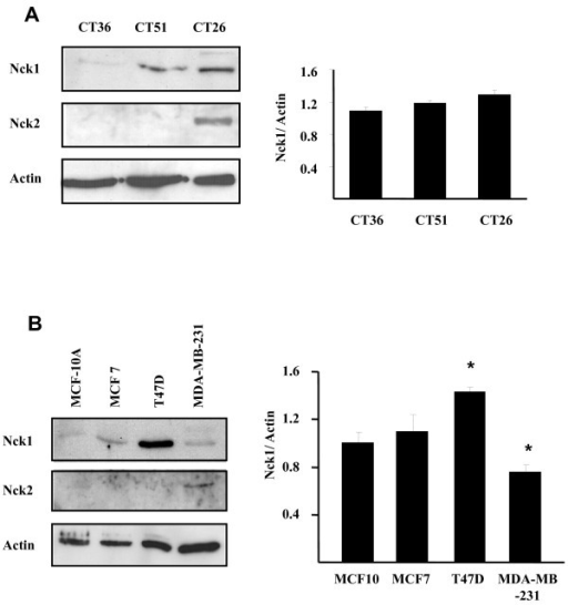 Expression of Nck1 and Nck2 in colon and breast cancer cells. Lysates (50 μg protein) from murine colonic carcinoma cells (A) and human breast cancer cells (B) were subjected to western blot analysis using anti-Nck specific antibodies (Additional file 1). CT36: rarely metastatic; CT51: intermediary; CT26: highly metastatic. MCF-10A: Normal human breast epithelial; MCF7, T47D, MDA-MB-231: invasive metastatic ductal carcinoma. For both cancer cell types, β-actin was probed as loading control.