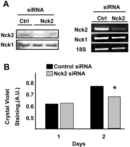 Effect of Nck2 on human metastatic melanoma cell proliferation. (A) Total cell lysates (30 μg protein) prepared from 451Lu human melanoma cells transfected with control or specific Nck2 siRNA were subjected to western blot analysis using specific antibodies that recognize Nck1 or Nck2 (left panel). RT-PCR was performed to determine Nck1 and Nck2 mRNA levels using total RNA and specific primers for human Nck1 and Nck2. 18S was used as control (right panel). (B) 451Lu human melanoma cells transfected with control or Nck2 siRNA were followed for proliferation 1 and 2 days after siRNA transfection. Results represent cell density corresponding to the mean of Crystal Violet incorporation ± SD from one experiment performed in triplicate. * p < 0.05 vs control siRNA using Student's t-test. Similar results were found in three independent experiments.