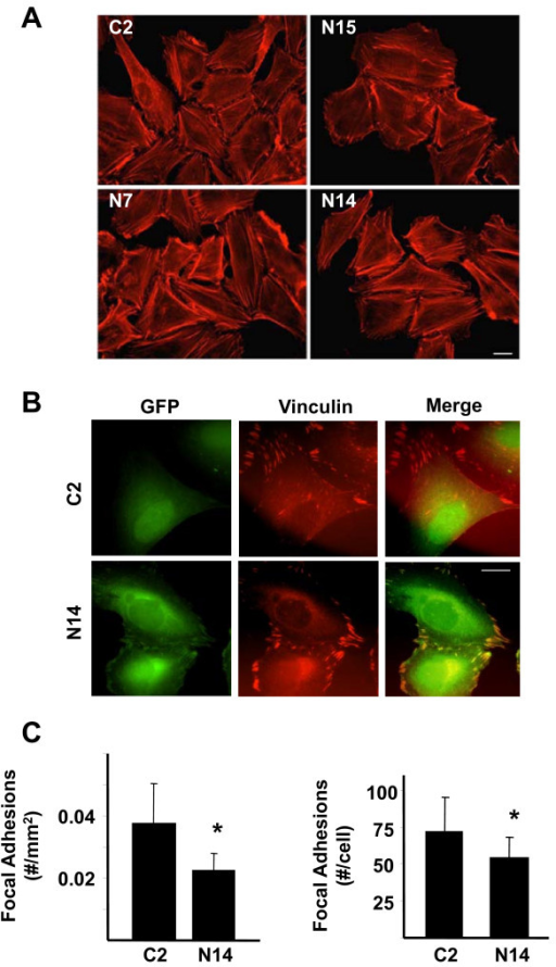 Effect of Nck2 on actin organization and focal adhesions in human primary melanoma cells. (A) WM278 human primary melanoma cells overexpressing GFP (C2) or increasing levels of GFP-Nck2 (N15 < N7 < N14) were submitted to actin staining using phalloidin-coupled to AlexaFluor®555. Pictures were taken at 40X and white bar represent 20 μm. (B) Fluorescence pictures of WM278 human primary melanoma cells stably overexpressing GFP (C2) or GFP-Nck2 (N14) subjected to vinculin staining using anti-vinculin specific antibody and GAM-TRICT (63X, white bar: 20 μm). (C) Manual quantification of focal adhesions as positive vinculin structures in 50 representative cell types. Results normalized for cell size are expressed as the mean of focal adhesion per mm2 or cell ± SD. * p < 0.001 vs C2 using Student's t-test.