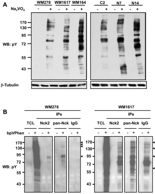 Effect of Nck2 on phosphotyrosine proteins in human melanoma cells. (A) Tyrosine phosporylated proteins in total cell lysates (30 μg protein) prepared from human primary (WM278) or metastatic (WM1617, WM164) melanoma cells, as well as from WM278 cells overexpressing GFP (C2) or GFP-Nck2 (N7, N14), treated with or without pervanadate (Na3VO4 at 100 μM, 15 min at 37°C), were evaluated by western blot using specific p-Tyr antibody. β-tubulin was probed as loading control. (B) Tyrosine phosporylated proteins coimmunoprecipitated with Nck2, pan-Nck or normal rabbit IgGs from human primary WM278 and metastatic WM1617 melanoma cell lysates were revealed by western blot using specific p-Tyr antibody. Arrow heads show proteins specific to or increased in Nck2 and pan-Nck IPs. Results shown are typical of 3-5 independent experiments.
