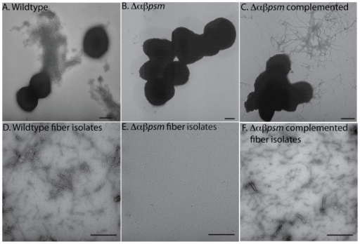 Mutants unable to produce α and βPSMs fail to form fibers during biofilm growth.TEM micrographs of S. aureus biofilm cells grown for five days in PNG media. (A) wildtype (strain SH1000), (B) Δαβpsm (strain BB2388), (C) Δαβpsm complemented (strain BB2408). (D–F) TEM micrographs of fiber preparations from wildtype (D), Δαβpsm (E), and Δαβpsm complemented (F). Bars indicate 500 nm.