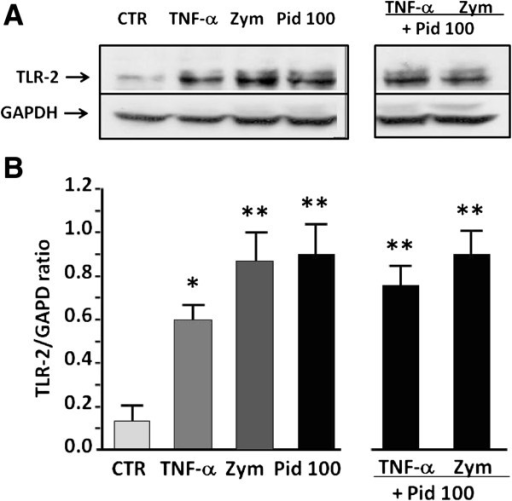 Western blot analysis of TLR-2 expression induced by pidotimod. (A) Representative western blot of TLR-2 and GAPDH expression of BEAS-2B incubated with medium alone (CTR) or treated with TNF-α, zymosan (Zym), pidotimod (Pid 100 μg/ml) or pidotimod (Pid 100 μg/ml) plus TNF-α or zymosan (Zym), for 24 h.(B) The densitometric analysis of TLR-2 expression, normalized to GAPDH, is shown on the ordinate and the different culture conditions on the abscissa. The data are expressed as mean ± SEM. *p < 0.05 and **p < 0.01 versus control. The results shown are representative of three independent experiments.