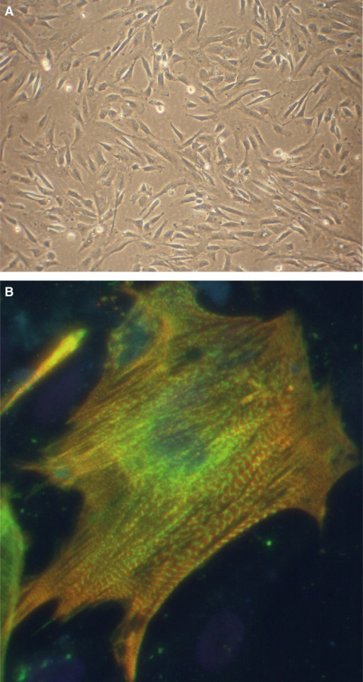 Human foetal-derived cardiomyocyte progenitor cells (CMPCs) cultures under proliferating conditions (A), and after differentiating by 5-aza and TGF-beta stimulation into beating cardiomyocytes (B). Beating cells were stained for cardiac actinin (red), troponin T (green) and hoechst (nuclei, blue).