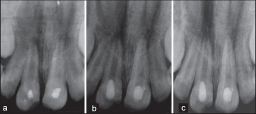(a) Intaroral periapical radiograph of maxillary central incisors showing open apices with thin dentinal walls. Revascularization with and without platelet rich plasma performed in 21 and 11 respectively. (b) At 6-month, 21 and 11 showing progressive dentinal wall thickening. (c) At 1 year, marked maturation and root lengthening in 21