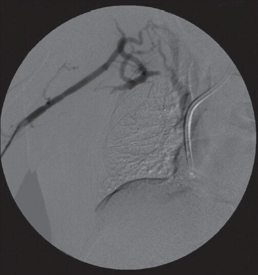 Fistulagram demonstrating central venous stenosis with collaterals
