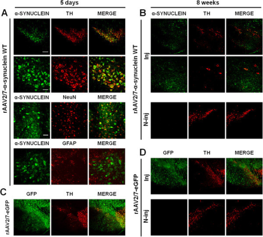 Efficient dopaminergic neuron transduction upon rAAV2/7 vector delivery in mouse SN. (A-B) Representative confocal images of fluorescent double immunostainings for α-synuclein (green) and TH (red) at (A) 5 days and at (B) 8 weeks after injection of rAAV2/7-α-synuclein WT at 8,0E + 11 GC/ml. (A) At 5 days post-injection, pictures reveal extensive co-localization (merge) in the transduced region. Bottom panels are magnifications of the overviews (upper panels). Scale bar upper panel = 200 μm and bottom panel = 50 μm. Confocal images of double immunostainings for α-synuclein (green) and NeuN or GFAP (red) show an almost exclusive neuronal transduction. Scale bar = 100 μm. (B) At 8 weeks after injection, a clear degeneration of the nigral dopaminergic neurons is observed upon rAAV2/7 vector-mediated α-synuclein overexpression. Dopaminergic neurons remain widely present in the contralateral side. (C-D) Fluorescent double stainings for GFP (green) and TH (red) at (C) 5 days and at (D) 8 weeks post-injection show that rAAV2/7-eGFP at 8,0E + 11 GC/ml does not induce any dopaminergic cell death over time. Inj: injected side; N-inj: non-injected side.