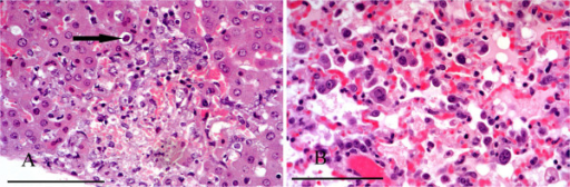 Toxoplasmosis. A: Focal hepatic necrosis and haemorrhage in a case of toxoplasmosis. A Toxoplasma cyst is present in the margin of the lesion (arrow). B: Pneumonitis caused by T. gondii. There is alveolar congestion and inflammatory cell infiltration with intraluminal and intramural macrophages and alveolar proteinaceous fluid. H & E Stain, bar = 100 mμ.