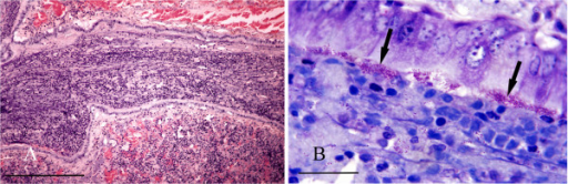 Bordetella bronchopneumonia. A: Histological section of lung showing a bronchiole occluded by a mass of inflammatory cells within a mucofibrinous matrix. H & E Stain, bar = 300 mμ. B: High power view of lung showing masses of B. bronchiseptica organisms (arrows) adhering to bronchiolar epithelium. Giemsa stain, bar = 25 mμ.