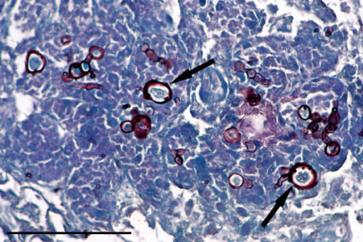 Pulmonary phaeohyphomycosis. Dark staining chlamydospores (arrows) are clearly visible in this granulomatous lung lesion, despite moderate autolysis. Grocott stain, bar = 25 mμ.