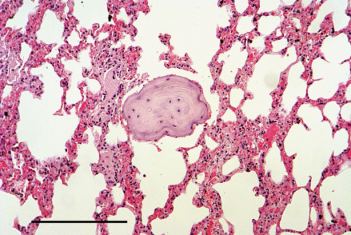 Pulmonary metaplastic bone. Section of lung showing a focus of metaplastic bone in the parenchyma. H & E Stain, bar = 200 mμ.