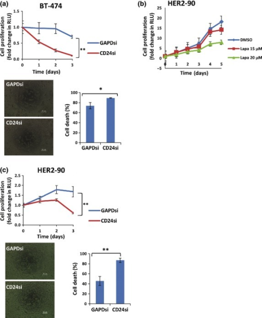 Knockdown of CD24 sensitizes human epidermal growth factor receptor 2 (HER2)-positive breast cancer cells to lapatinib treatment. (a) BT-474 cells were transfected with control (GAPD) or CD24 siRNA for 24 h and then exposed to 0.5 μM lapatinib for 48 h for cell death assay or for the indicated times, after which cell viability was determined with an Cell titer Glo assay kit (top panel) and cell death was evaluated by staining with trypan blue (bottom panels). Cell proliferation data are expressed as fold change in relative luminescence units (RLU) relative to time 0, and all quantitative data are means ± SD from triplicate experiments. *P < 0.05, **P < 0.01 (Student's t-test). Scale bars, 100 μm. (b) HER2-90 cells were incubated with the indicated concentrations of lapatinib or with DMSO vehicle for the indicated times, after which cell viability was determined with an assay kit as in (a). (c) HER2-90 cells were transfected with control (GAPD) or CD24 siRNAs for 24 h and then treated with 15 μM lapatinib for 48 h, after which cell viability and cell death were determined as in (a).