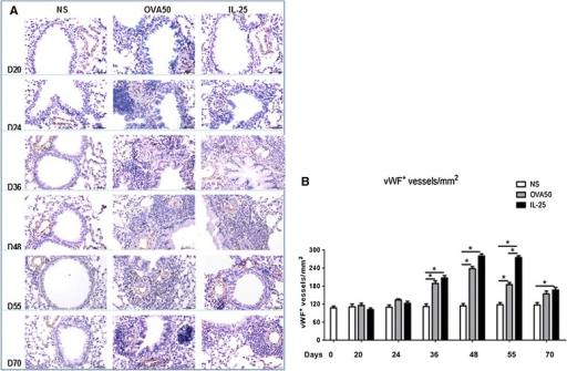 IL-25 increased airways vWF expression. A: Representative photomicrographs of von Willebrand factor (vWF) immunoreactivity in lung sections from saline (NS)-, OVA- and IL-25-challenged mice at various time points as indicated (original magnification x20). B: Quantitative analysis of vWF+ blood vessels per unit area of lung sections. Data were collected from 3 independent experiments and are expressed as the mean ± SEM (n = 5 in each group of mice at each time point).*p < 0.05.