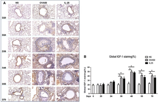IL-25 induced airways IGF-1 expression. A: Representative photomicrographs of insulin-like growth factor 1 (IGF-1) immunoreactivity in lung sections from saline (NS)-, OVA- and IL-25-challenged mice at various time points as indicated (original magnification x20). B: Quantitative analysis of IGF-1 immunoreactivity. The data were collected from 3 independent experiments and are expressed as the mean ± SEM (n = 5 in each group at each time point). *p < 0.05.