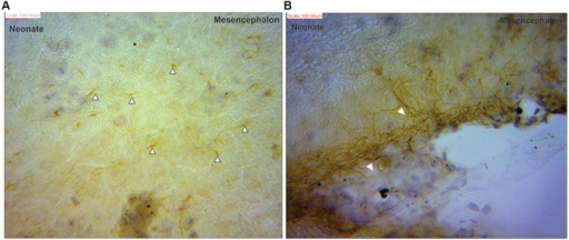Glial fibrillary acidic protein positive immunostaining for astrocytes (black arrows) in neonate (A) mesencephalon showing more processes than cell bodies (B) at the pial surface of the mesencephalic region.
