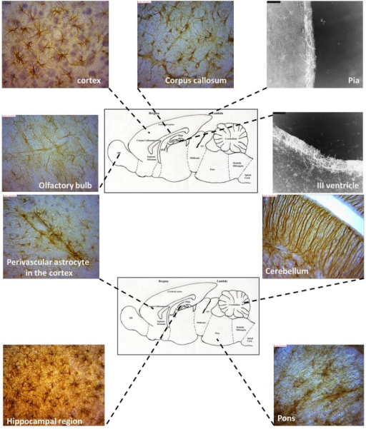 Representative astrocyte morphologies from selected regions of the AGR brain (Images were obtained from sagittal sections and immunolabeled with GFAP).