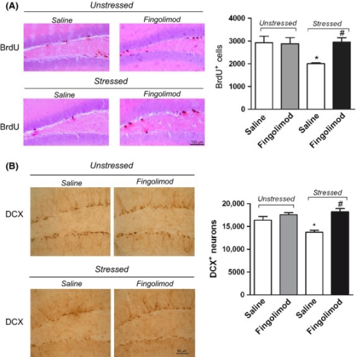 Fingolimod treatment enhances adult neurogenesis in the hippocampal dentate gyrus of mice exposed to CUS. Stereological counts of BrdU+ or DCX+ cells in the dentate gyrus of unstressed and CUS (stressed) mice treated with saline or fingolimod are reported in (A) and (B), respectively. Representative images of BrdU or DCX staining are also shown. Values are means + SEM of 5 determinations per group in (A) and 4 determinations per group in (B). Two-way ANOVA + Fisher' LSD; BrdU+ cells, stressed/unstressed: F(3,16) = 3.829, P > 0.05; drug treatment: F(3,16) = 4.366, P > 0.05; stressed/unstressed x drug treatment: F(3,16) = 5.273, P < 0.05; DCX+ cells, stressed/unstressed: F(3,12) = 2.483, P > 0.05; drug treatment: F(3,12) = 20.898, P < 0.05; stressed/unstressed × drug treatment: F(3,12) = 6.768, P < 0.05. Post hoc analysis: P < 0.05 versus the respective groups of unstressed mice treated with saline (*), or versus the respective groups of stressed mice treated with saline (#).