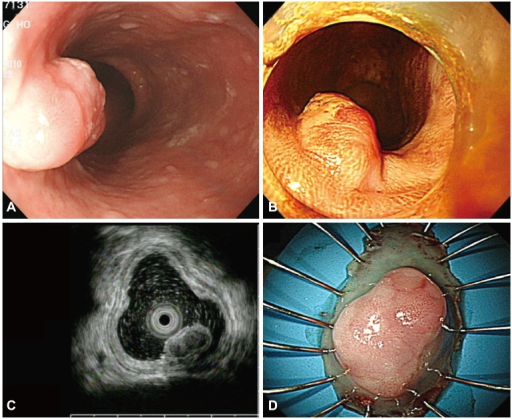 (A) An endoscopic image shows a subepithelial tumor with an eroded surface in the middle third of the esophagus. (B) Lugol chromoendoscopy shows the iodine-unstained lesion. (C) Endoscopic ultrasonography demonstrates a hypoechoic, homogeneous lesion that originates from the muscularis mucosa and is covered by a squamous cell carcinoma in situ. (D) The specimen with the lesion after its en bloc resection.