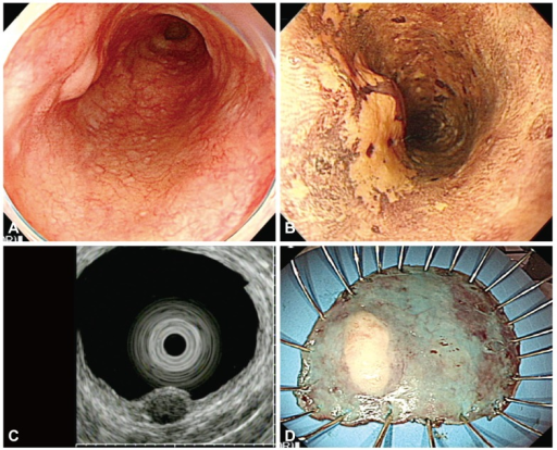 (A) Endoscopic examination shows a subepithelial tumor with a flat hyperemic lesion in the upper esophagus. (B) Lugol chromoendoscopy shows the iodine-unstained lesion. (C) Endoscopic ultrasonography demonstrates a hypoechoic, homogeneous lesion that originates from the muscularis mucosa and is covered by a superficial squamous cell carcinoma. (D) The specimen with the lesion after en bloc resection.