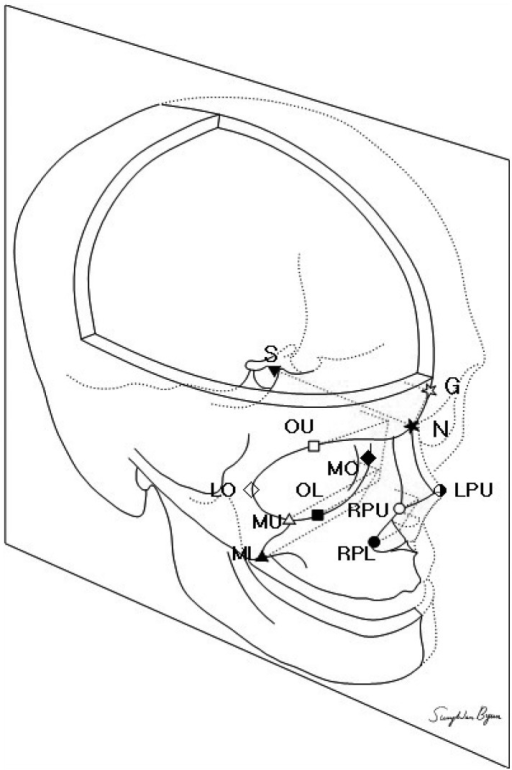 Points used for angular measurement. With given coordinates, dot products between the reference line (sella-nasion line) and individual lines were used to measure angles between them. The orbital aperture width (distance between the posterior lacrimal crest to the frontozygomatic suture) and the pyriform width (between both upper points of the pyriform apertures) were also measured. S, sella; N, nasion; G, the maximal prominence of the glabella; OU, the upper midpoint of the orbit; OL, the lower midpoint of orbit; MO, the medial point of the orbit; LO, the lateral point of the orbit; MU and ML, the upper and lower points of the maxillary wall at the articulation of the inferior maxillary wing and alveolar arch; RPU, the right upper point of the pyriform aperture; LPU, the left upper point of the pyriform apertrue; RPL, the right lower point of the pyriform aperture.