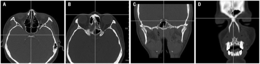 Three-dimensional (3D) co-ordinates of the sella and nasion in a PACS as the reference line for angular measurement. The 3D co-ordinates of the sella (A) and nasion (B) on axial images were measured using a pixel lens cursor in a PACS report viewer. Each point was verified on reconstructed coronal (C and D) and sagittal images in the PACS report viewer. PACS, picture archiving and communication system.