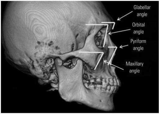 Mean angular measurements marked on a three-dimensional reconstructed sample image of a female in the middle age group. A prominent zygoma and a wide mandibular angle are seen.