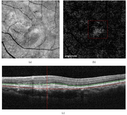 Distinguishing the choriocapillaris artifact from choroidal neovascularization (CNV). (a and b) A 6∗6-mm En face angiogram of the outer retina from a 62-year-old woman who were previously treated with 18 intravitreal anti-VEGF injections showing a homogenous and ill-defined network of vessels with a granular appearance (red dashed box). (c) Spectral-domain optical coherence tomography displaying a fusiform or spindle-shaped complex of high reflectivity located within the subretinal space.