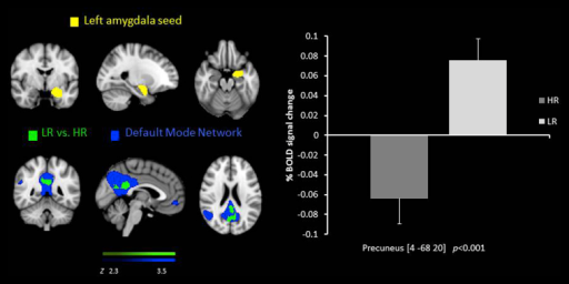 Resting state functional connectivity between the left amygdala seed region  and the precuneus, lower in the HR group than the LR  overlaid on the DMN . % BOLD signal change extracted for connectivity for both of the groups.