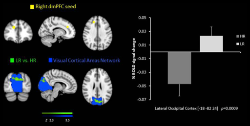 Resting state functional connectivity between the right dmPFC seed region  and the lateral occipital cortex, lower in the HR group than the LR  overlaid on the Visual Cortical Network . % BOLD signal change extracted for both of the groups.