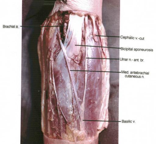 brachial artery cephalic vein bicipital aponeurosis open i