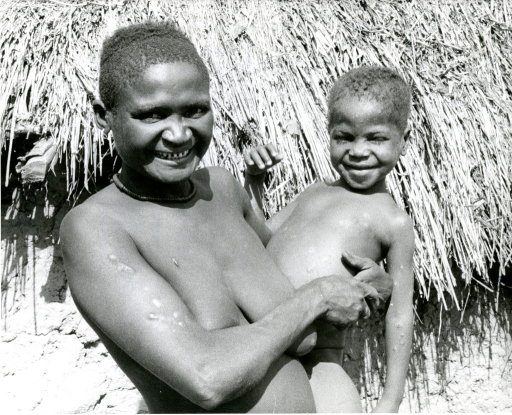 <p>Yaws is a widespread, disfiguring treponemal disease causing deep-seated infirmity if untreated. It can be cured by a single injection of long-acting penicillin. 280 million people were examined and 35 million treated between 1950 and 1960. Ten days after receiving a single injection of penicillin, little Ede's sores have almost disappeared.</p>